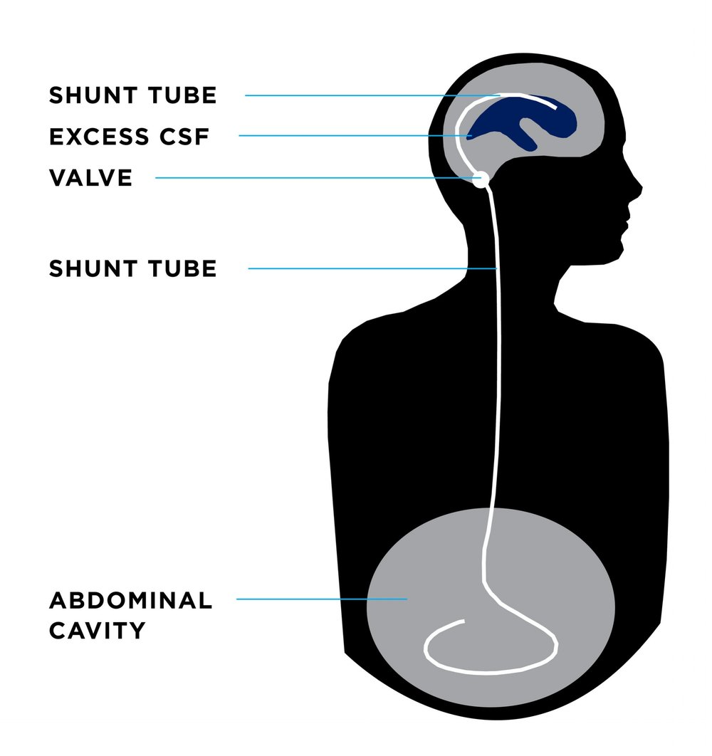 Treatment - There is currently no known way to prevent or cure hydrocephalus and the only treatment option today requires brain surgery.The most common treatment for hydrocephalus—and the most common procedure performed by pediatric neurosurgeons in the United States—is the surgical implantation of a device called a SHUNT. A shunt is a flexible tube placed into the ventricular system of the brain which diverts the flow of CSF into another region of the body, most often the abdominal cavity, where it can be absorbed.