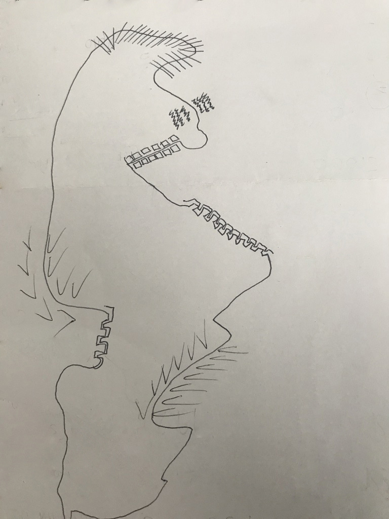 A somatic map | a line drawing in response to my question.