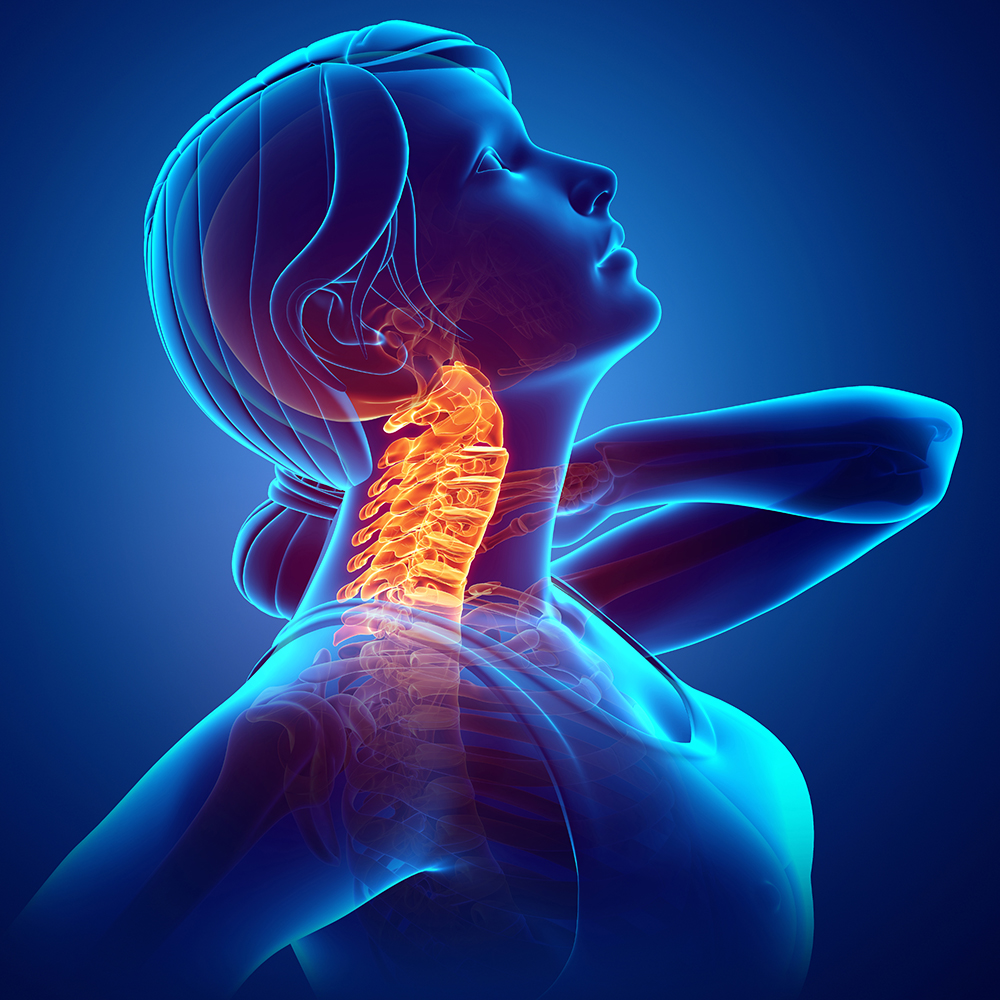 cityphysio-symptoms-headneck-cervicalspine.jpg