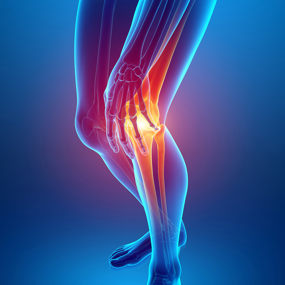 cityphysio-symptoms-lowerlimbs-knee.jpg