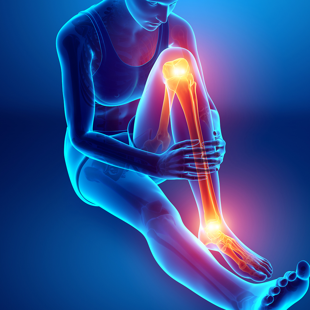 cityphysio-symptoms-lowerlimbs-shinsplints.jpg