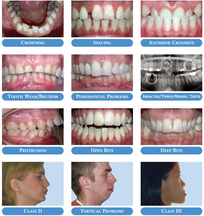 orthodontic-cases.jpg