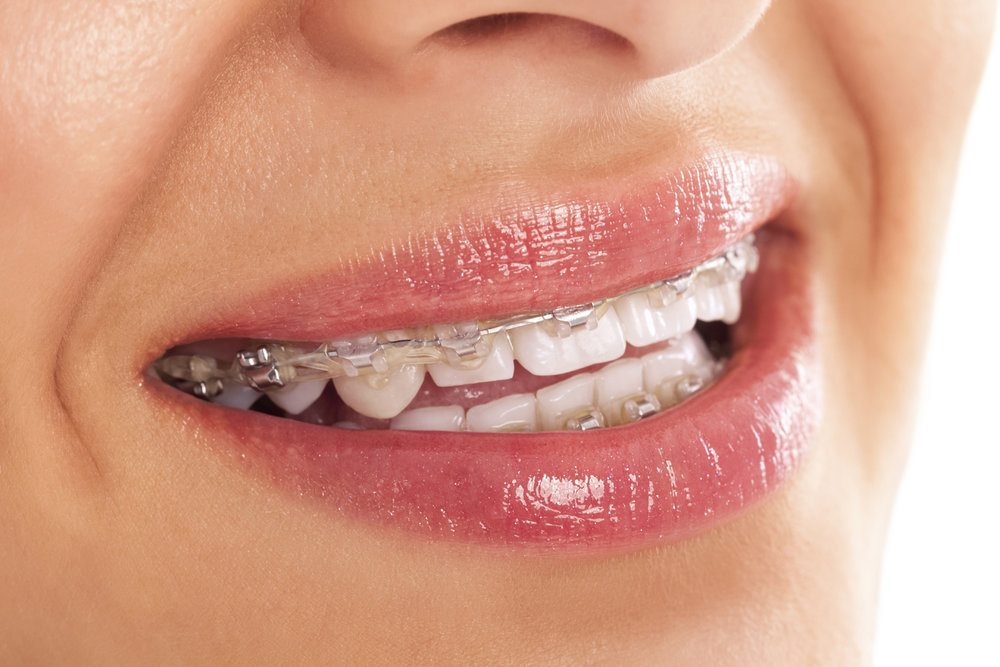 Oppenheimer Orthodontics offers ceramic brackets.