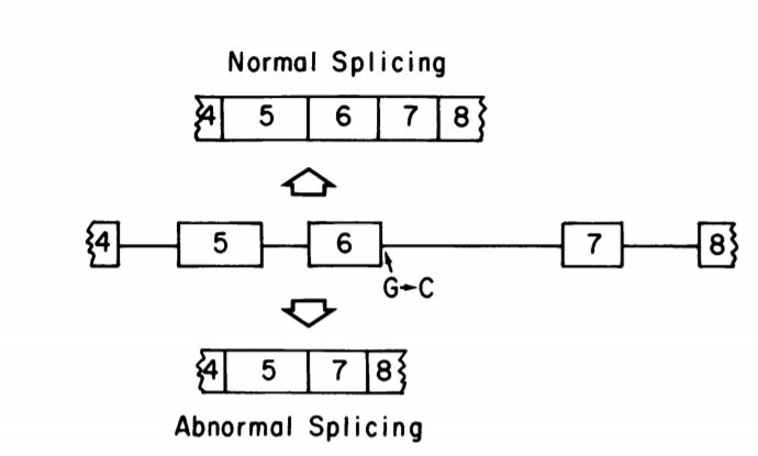 Abnormal splicing pattern found in cdna from a patient with porphyria cutanea tarda.