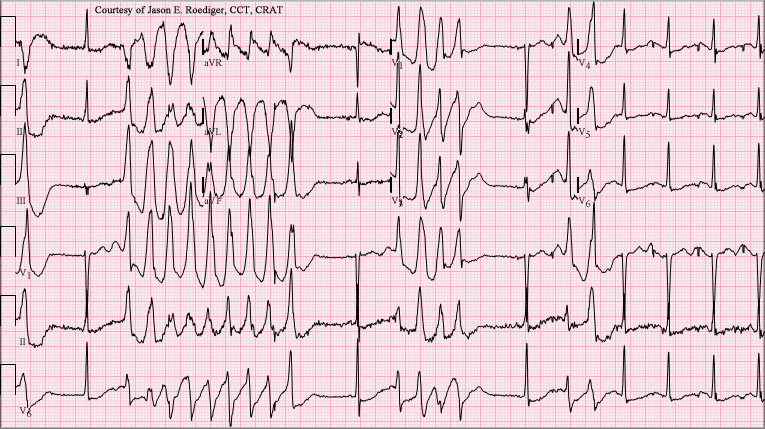 Torsades de Pointe: a ventricular arrhythmia caused by prolongation of the QT interval which often degenerates into lethal fibrillation.