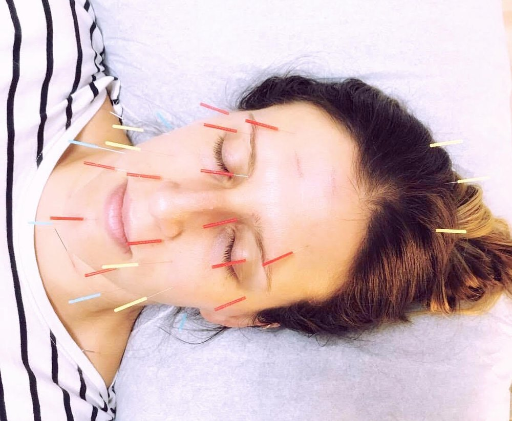 Facial Acupuncture Rejuvenation