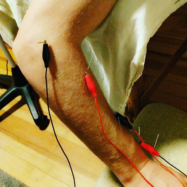 ElectroAcupuncture can get rid of wrist pain! #acupuncture #healing