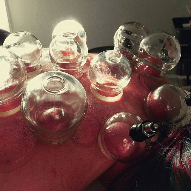 #cuppingtherapy works wonders for back pain & tension!  #acupuncture #cupping