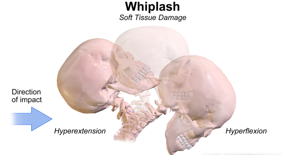 Whiplash can be treated with acupuncture