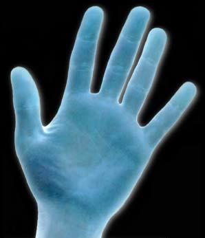 hyperhydrosis of the hands