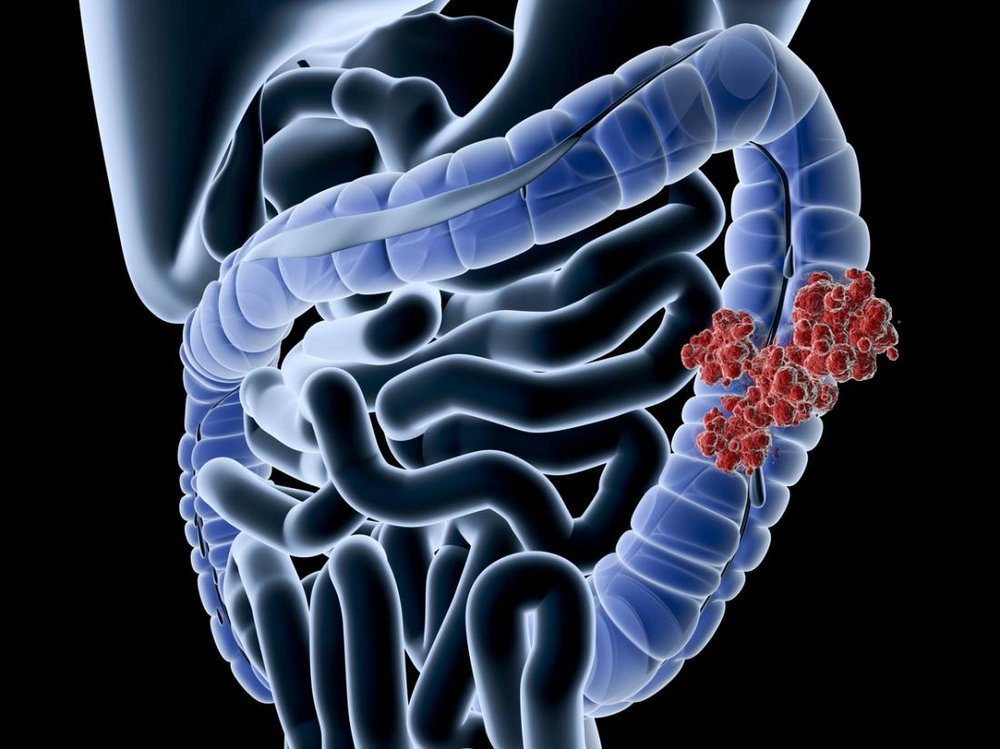 colon-cancer-affects-the-large-intestine-it-usually-develops-from-benign-polyps.jpg