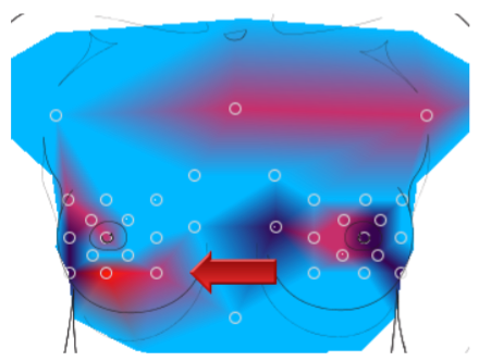 Thermography Scan showing breast blockages and compensating pathways that are over-used.