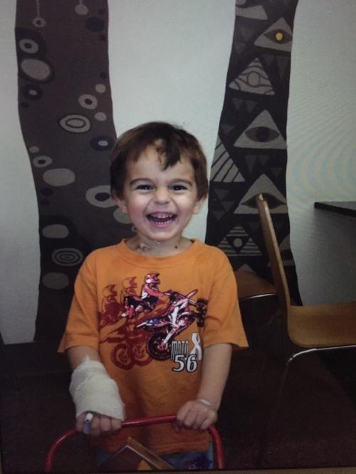 Leo 3 days after kidney removal.jpg