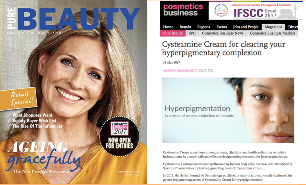 Cysteamine Cream for clearing your hyperpigmentary complexion -