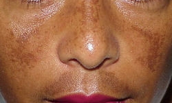 Melasma is a complex chronic skin disorder that affects the social life of many patients -