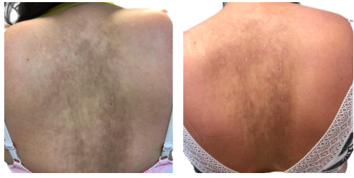 Results after 8 weeks. 15 minutes daily application of Cysteamine®