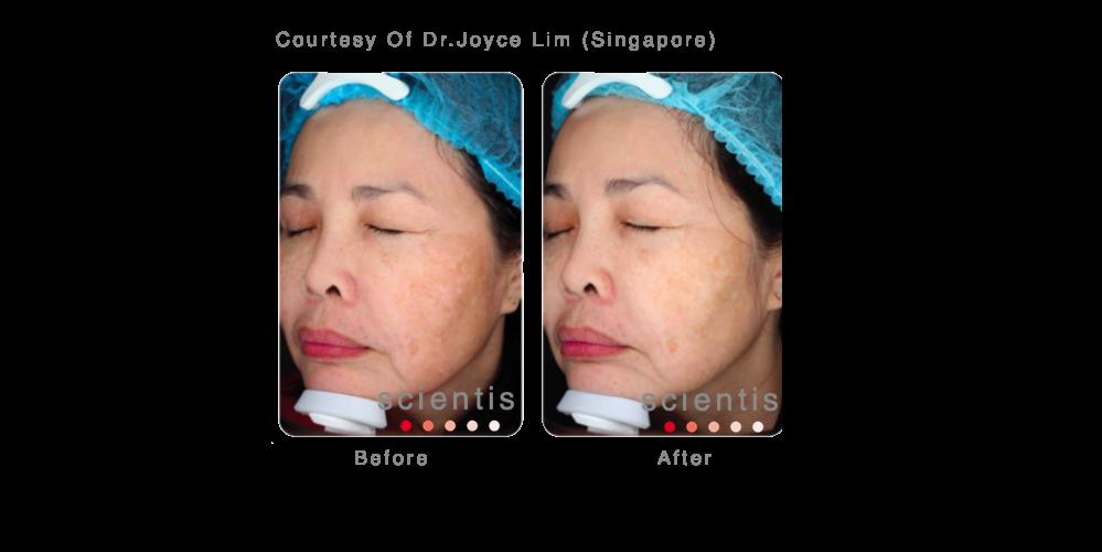 Joyce Lim 4 .png