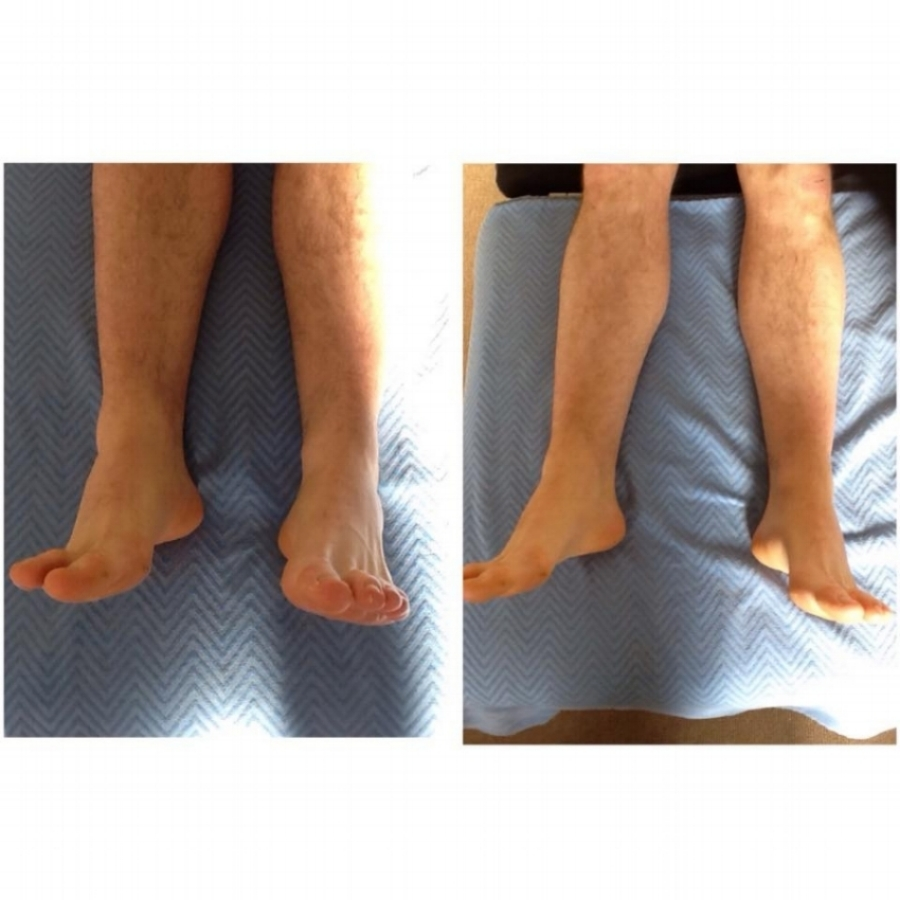 Functional Leg Length Difference -