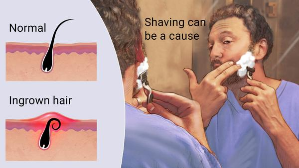 CONS - CONS-     Hair grows back at a rapid speed-     Ingrown hairs and bumps-     Allows the hair root follicle to grow back thicker-     Can be extremely harmful to people who have sensitive skin-     Possible chafing-     Abrasions, cuts and irritation.-     Certain areas of the human body react to shaving more negatively than others such as your anus or facial areas