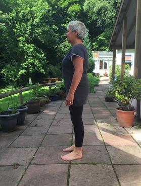 Posture After Hip Surgery