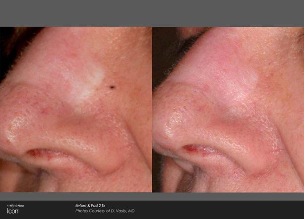 icon-d-vasily-surgicalscar-nose-post2tx.jpg