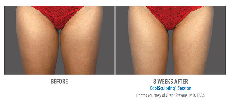 Coolsculpting-Thigh-Before-After-1.jpg