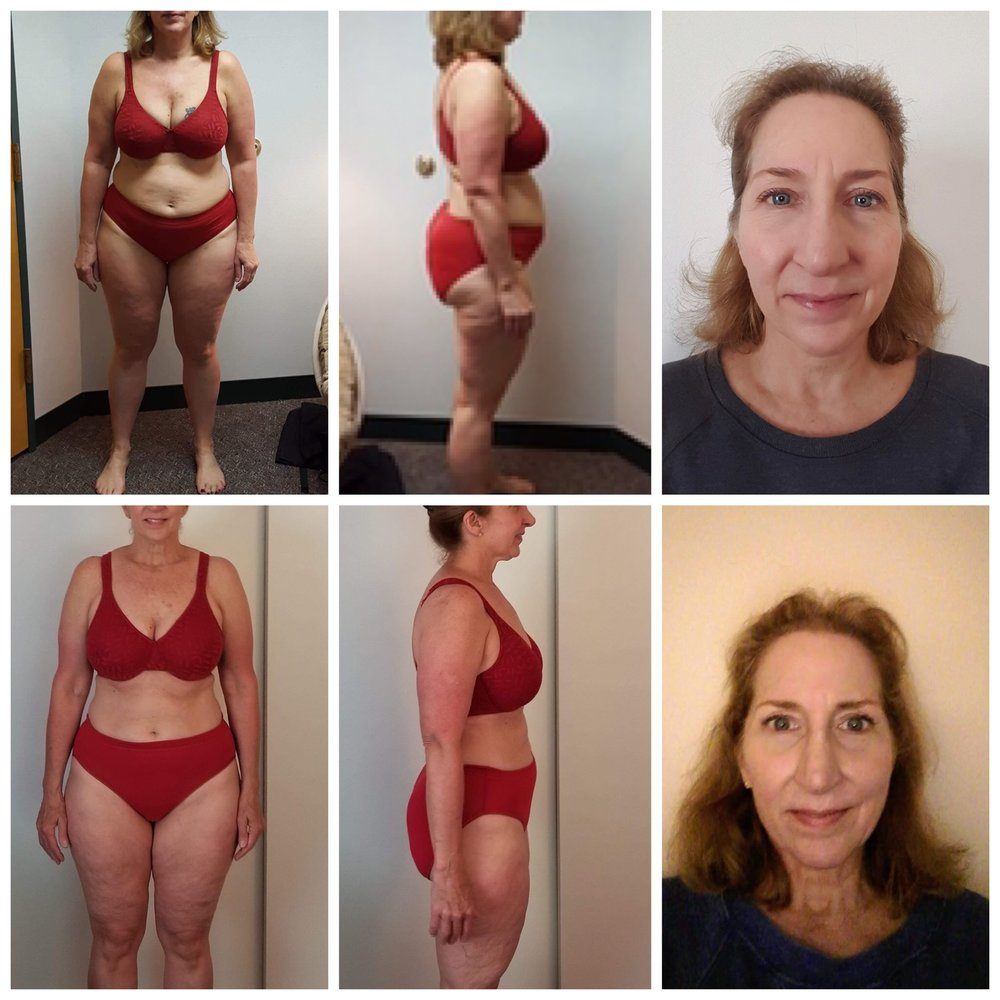 Donna D - 17lbs & 12in released in 90 days! -