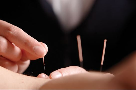 Acupuncture - Acupuncture is the method of inserting fine filiform needles strategically on the body to elicit a biomedical response to treat pain, digestive problems, inflammation, hormonal imbalance, sleep disorders and many other health dysfunctions. When the appropriate treatment is administered properly, a profound effect on your body's natural inclination to repair and restore is put into action.
