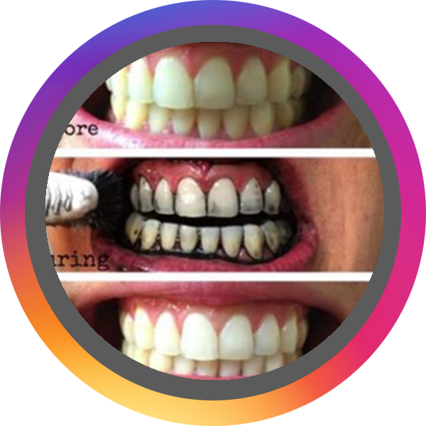 blackmagic_toothpaste_Official BADGE.png