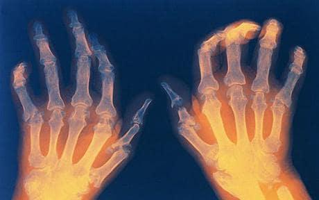 arthritis_1292749c.jpg