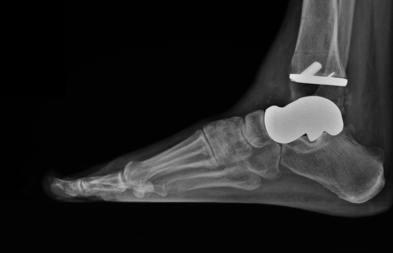3-D–printed talus with the tibial component of a total ankle in place.