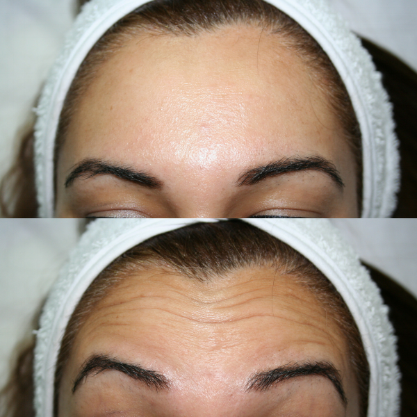 Radiance Skin Care -facial rejuvenation.png