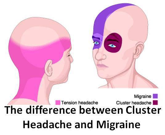 Cluster-Headache-vs.-Migraine