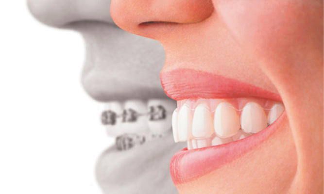 Dental World Kapolei provides Invisalign treatment for crooked teeth.