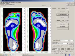 Orthotics Foot Technology