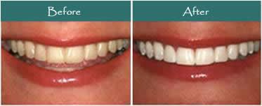 Proc-TeethWhite_clip_image009.jpg
