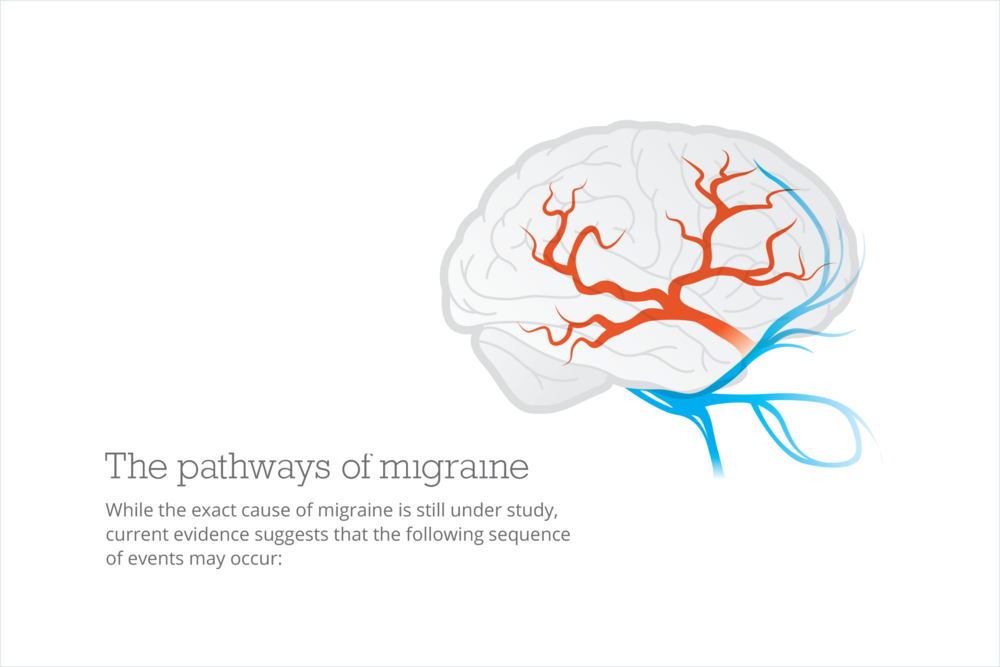 1) Migraine originates deep within the brain.      2) Electrical impulses spread to other regions of the brain.     3) Changes in nerve cell activity and blood flow result in symptoms such as visual disturbance, numbness or tingling, and dizziness.     4) Chemicals in the brain cause blood vessel dilation and inflammation of surrounding tissue.     5) The inflammation irritates the trigeminal nerve, resulting in severe or throbbing pain.