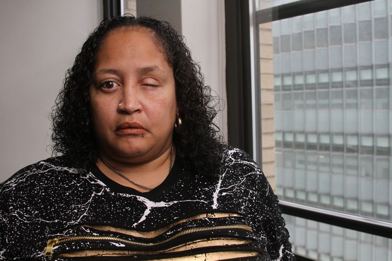 Johanna Pagan-Alomar, 45, claims she was brutally assaulted by a female police officer following the arrest of her friend. She claims the female officer pinned her down to the ground and punched her in her eye repeatedly and destroyed her eyeball with a handcuff key in the officer's fist. Bronx, New York, Thursday March 21, 2019 (Jesse Ward / New York Daily News)