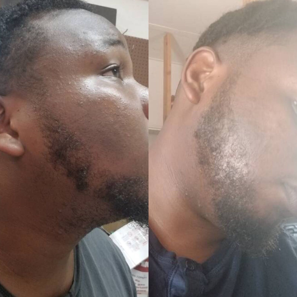 1 months results