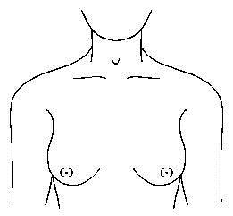 breast_exam_1