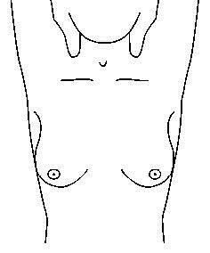 breast_exam_2