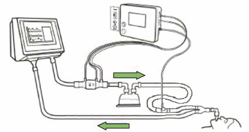 Sirkuit ventilator yang dihubungkan dengan NOxBOXi