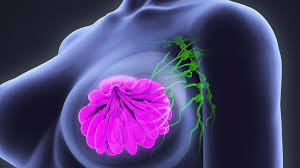 Screening for breast cancer with mammography is recommended to start at about age 40-50 (there is no consensus).  Mammograms unfortunately show only a very small decrease in breast cancer mortality,  and self-exams are no longer encouraged because of lack of evidence.  Click the link below to my blog on the pro's and con's of mammography. -