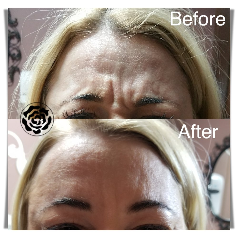 WHAT: Botulinum Toxin    WHERE: Forehead and frown lines    WHEN: Takes 10-14 days for full effect, lasts 3-4 months    HOW: Injected by experienced practitioner, no down-time    WHY: For a more youthful and refreshed look as well as to prevent future static lines!