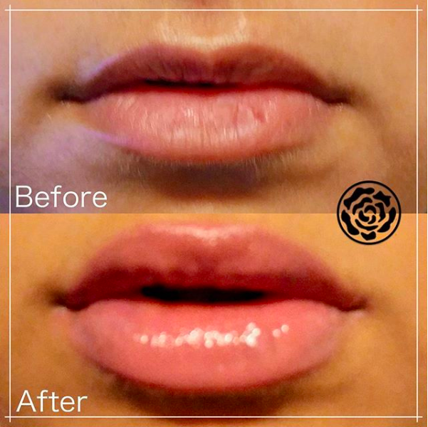 WHAT: Dermal Filler    WHERE: Lips    WHEN: Immediate effects, lasts 9 months +    HOW: Injected by experienced practitioner, no down-time    WHY: For a rehydrated and refreshed/youthful appearance