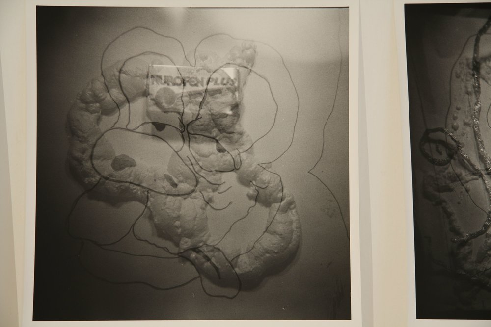 MATTHEW HOPKINS  Brainspot #2   2009 silver gelatin photographs 16 x 20 inches Edition of 3