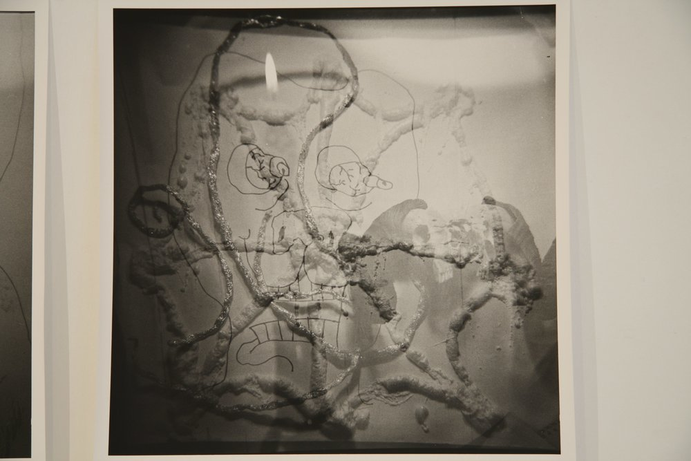 MATTHEW HOPKINS  Brainspot #3   2009 silver gelatin photographs 40.64 × 50.8 inches Edition of 3