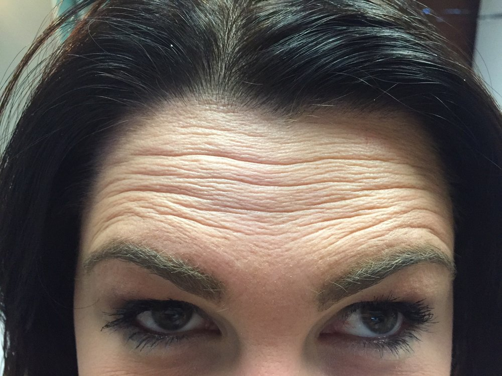 """The """"extreme"""" before - I was asked to look up as hard as I could. November 20th, 2017"""