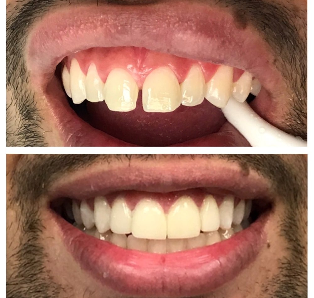 lumineers-smile-transformation-ameri-dental-group-nyc-new-jersey
