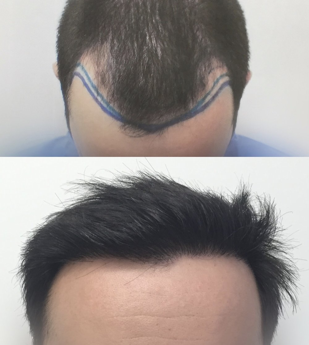 32 Years Old.  Reconstruction of hairline and frontal-temporal recession.  2500 Follicular Units transplanted.  No finasteride.